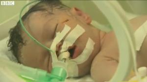 Shimah yang di sleamatkan oleh doktor yang hebat di GAZA akhirnya meninggal hari ini, selepas 5 hari