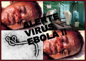 Ebola menyerang