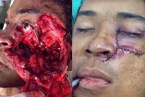 Doktor telah melakukan pembedahan yang amat berjaya di Mexico